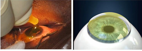Keratoconus Cross Linking Laser Eye Centre Ltd